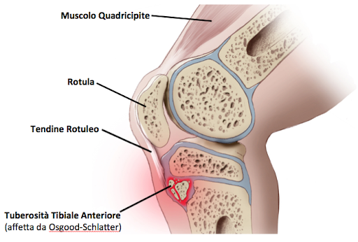morbo di osgood schlatter